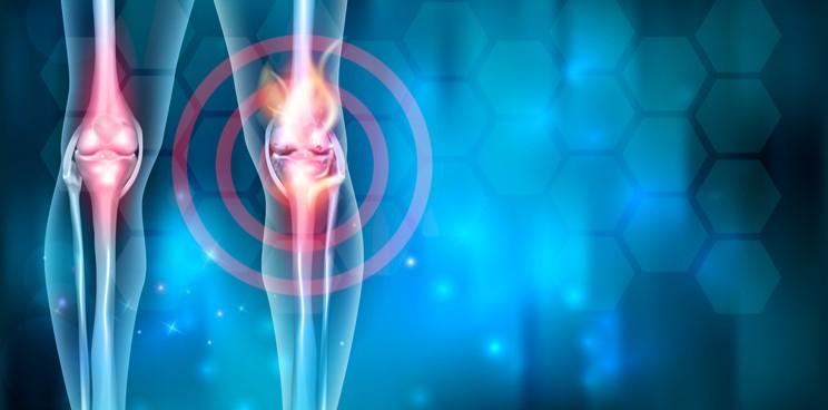 Osteoarthritis Knee Pain Clinic Canton GA | Osteoarthritis Knee Therapy